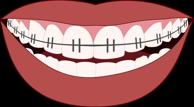 spesialis ortodonti